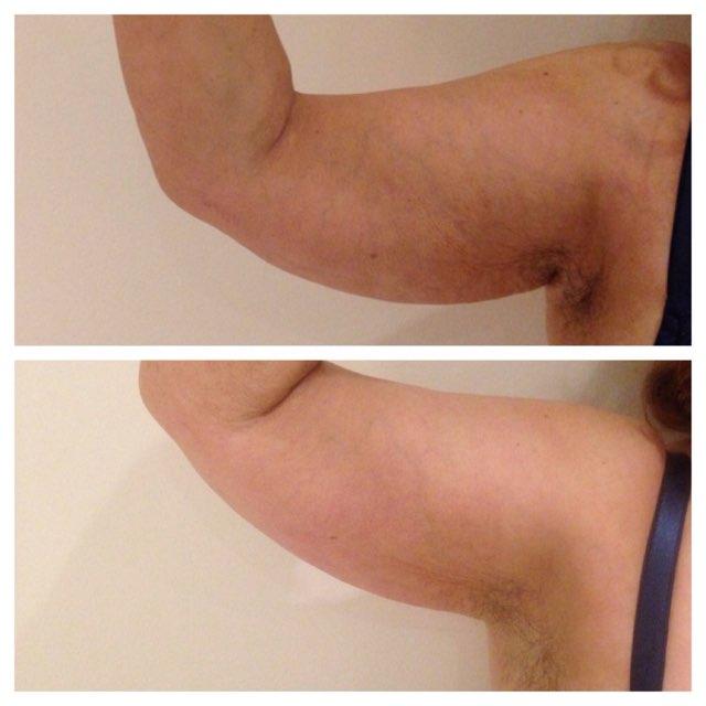 Arm Slimming Results.jpg