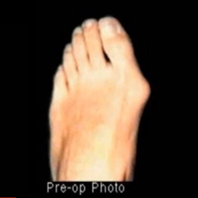 ib-bunion-deformity-before.jpg