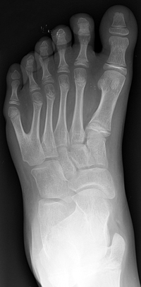 Foot with six toes