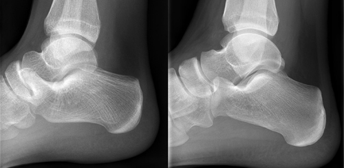 Tarsal Coalition – Before & After
