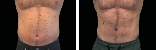 man-abdomen-pic5.png