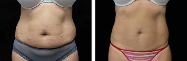 women-abdomen-pic-EMSCULPT.png