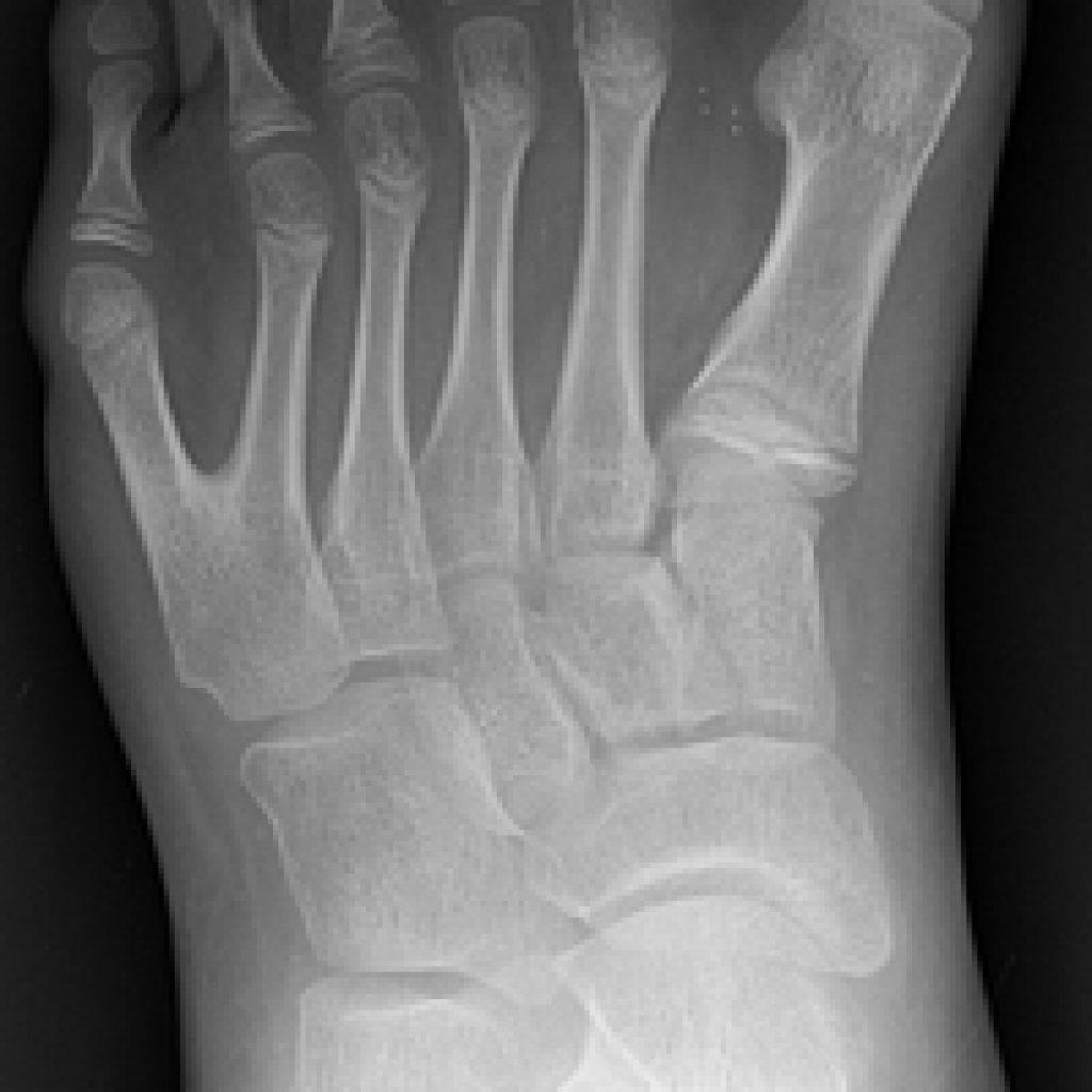 feet-polydactyly-1024x1024.jpg