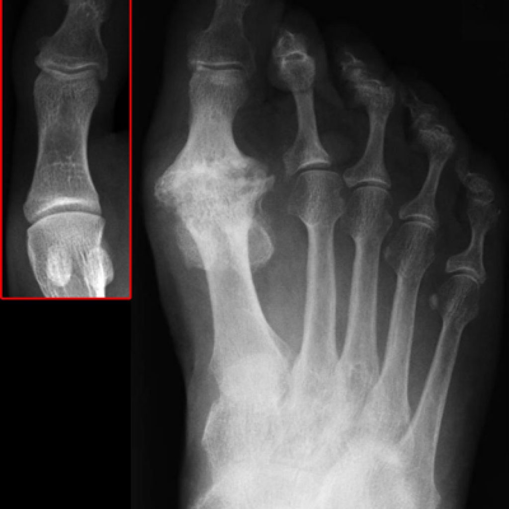 big-toe-joint-arthritis-1024x1024.jpg
