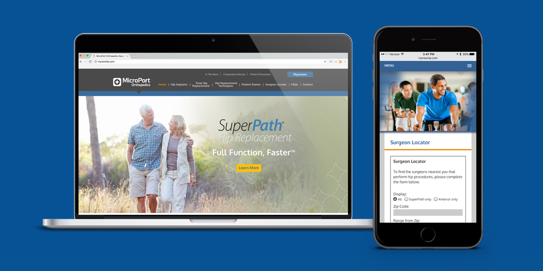 MicroPort: SuperPath Hip Replacement Website