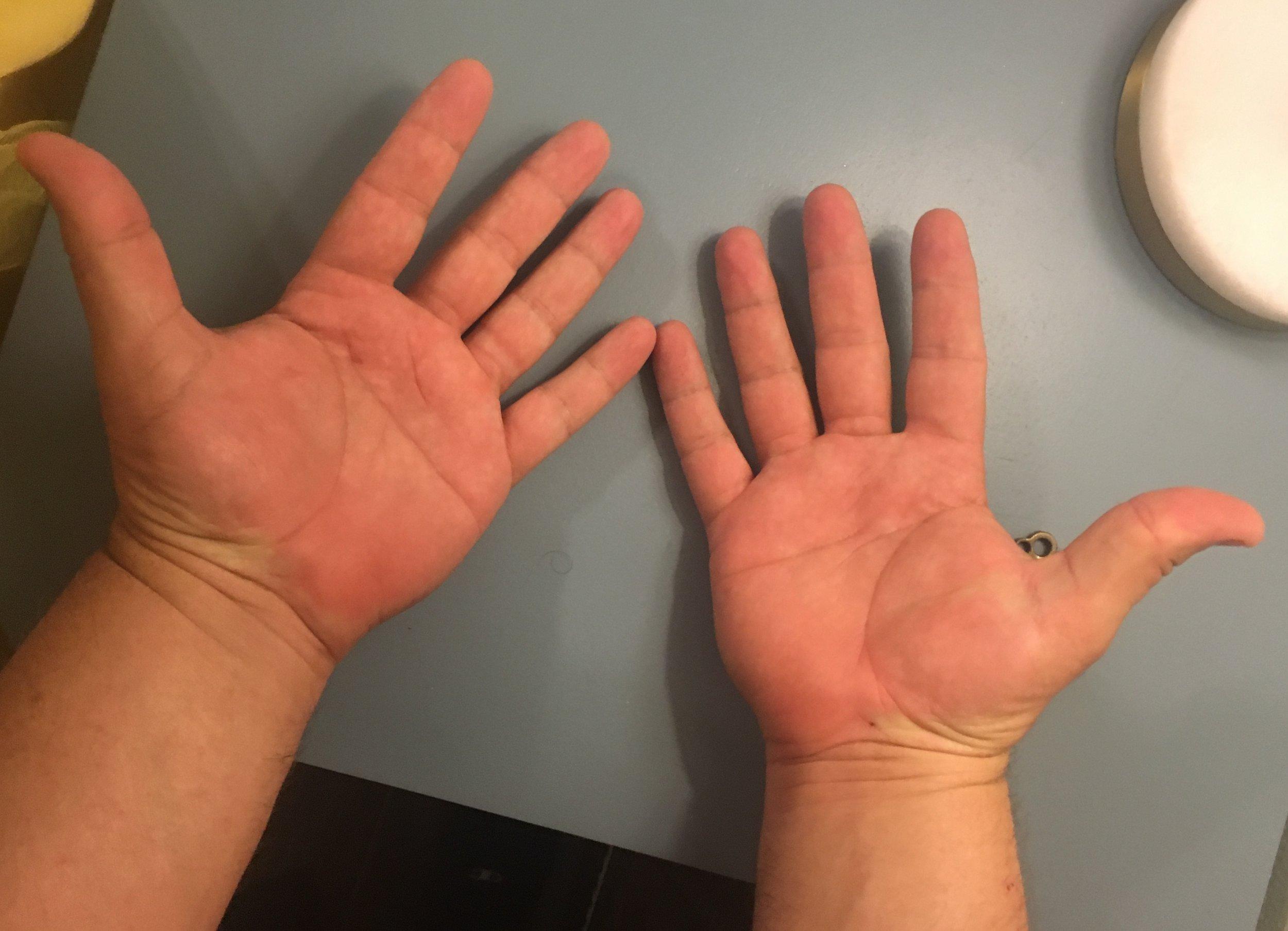Gambler Hands 1.JPG