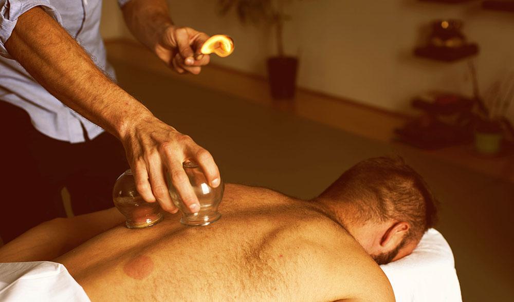 Cupping-Toronto-Fix-Me-Up-Matt-Sedo-massage-flame-small.jpg
