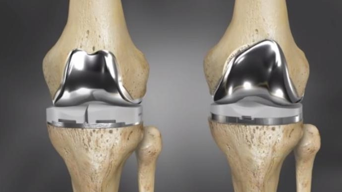 Custom Knee Replacement - 3D Printing Technology allow individualized sizing and alignment