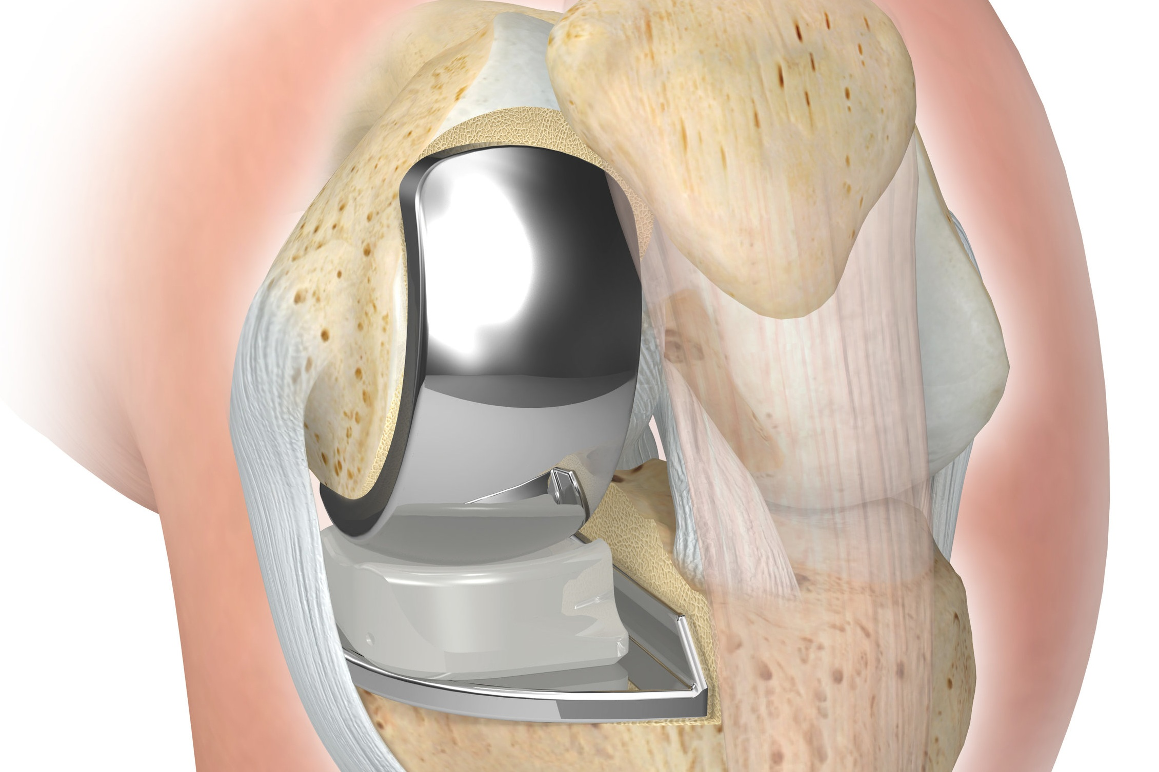 Uni Knee Replacement with Navigation - Custom Fit for Each Individual Knee