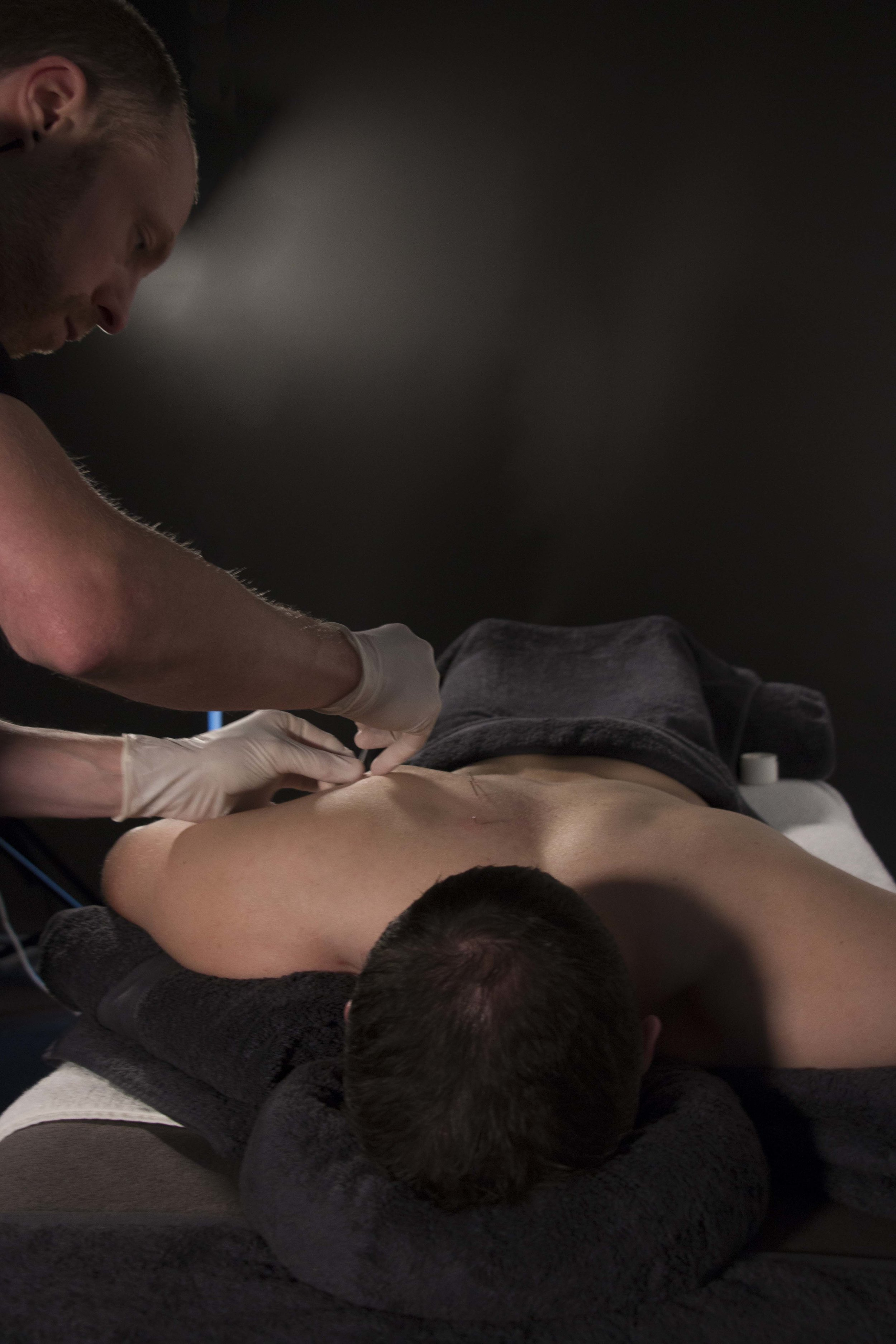 Dry Needling: - 1. Effective treatment to reduce muscle pain and tension2. Hair-line fine needle is inserted into muscle trigger point3. Excellent safety record, nearly painless procedure4. Evidence based intervention supported by research5. Tennis elbow, lower back pain and rotator cuff injuries are conditions that respond to dry-needling