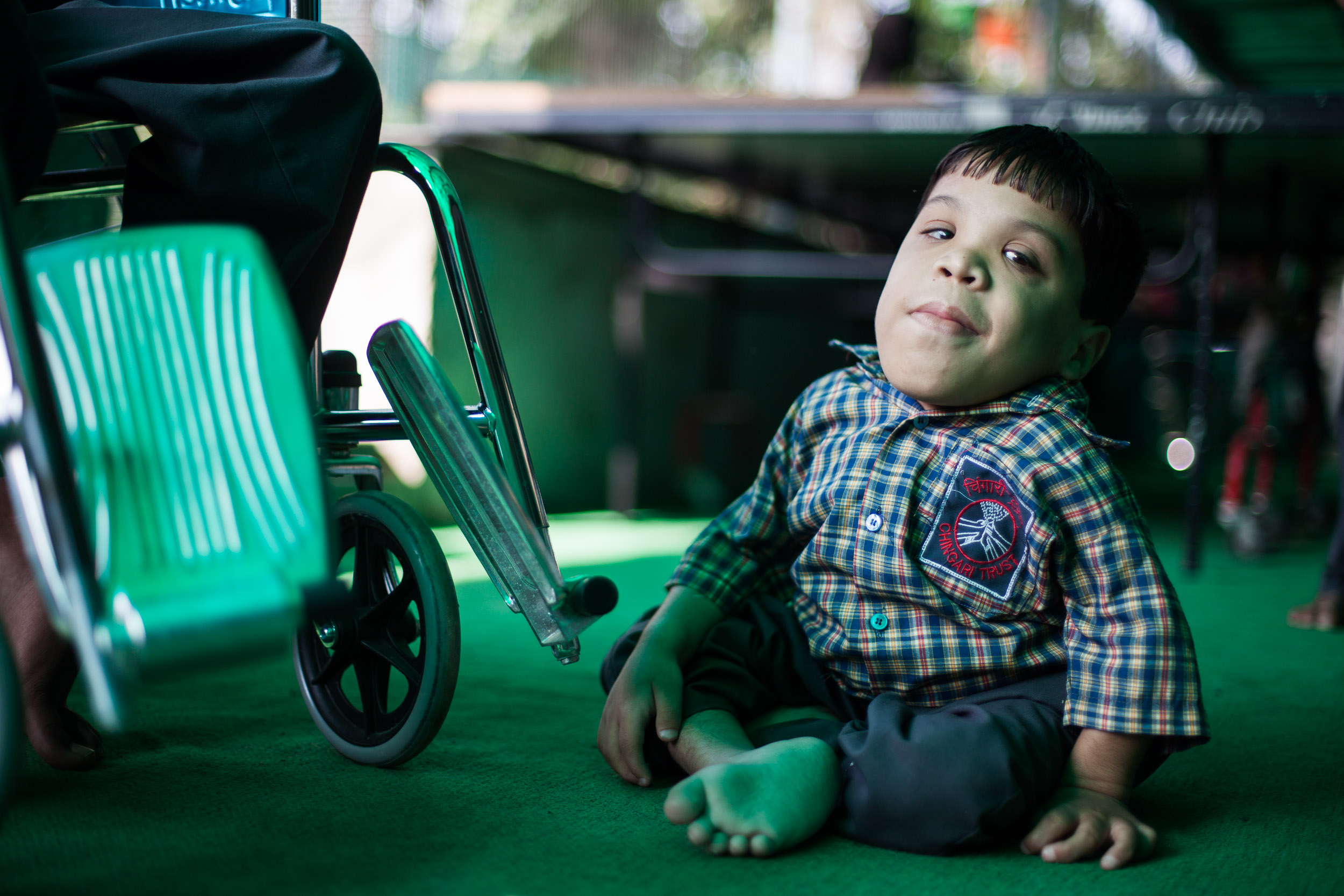 One of the kids of Bhopal that was born with problems after the accident. Since then many kids are born with: Cerebral palsy, deformities, autism, deafness, etc.