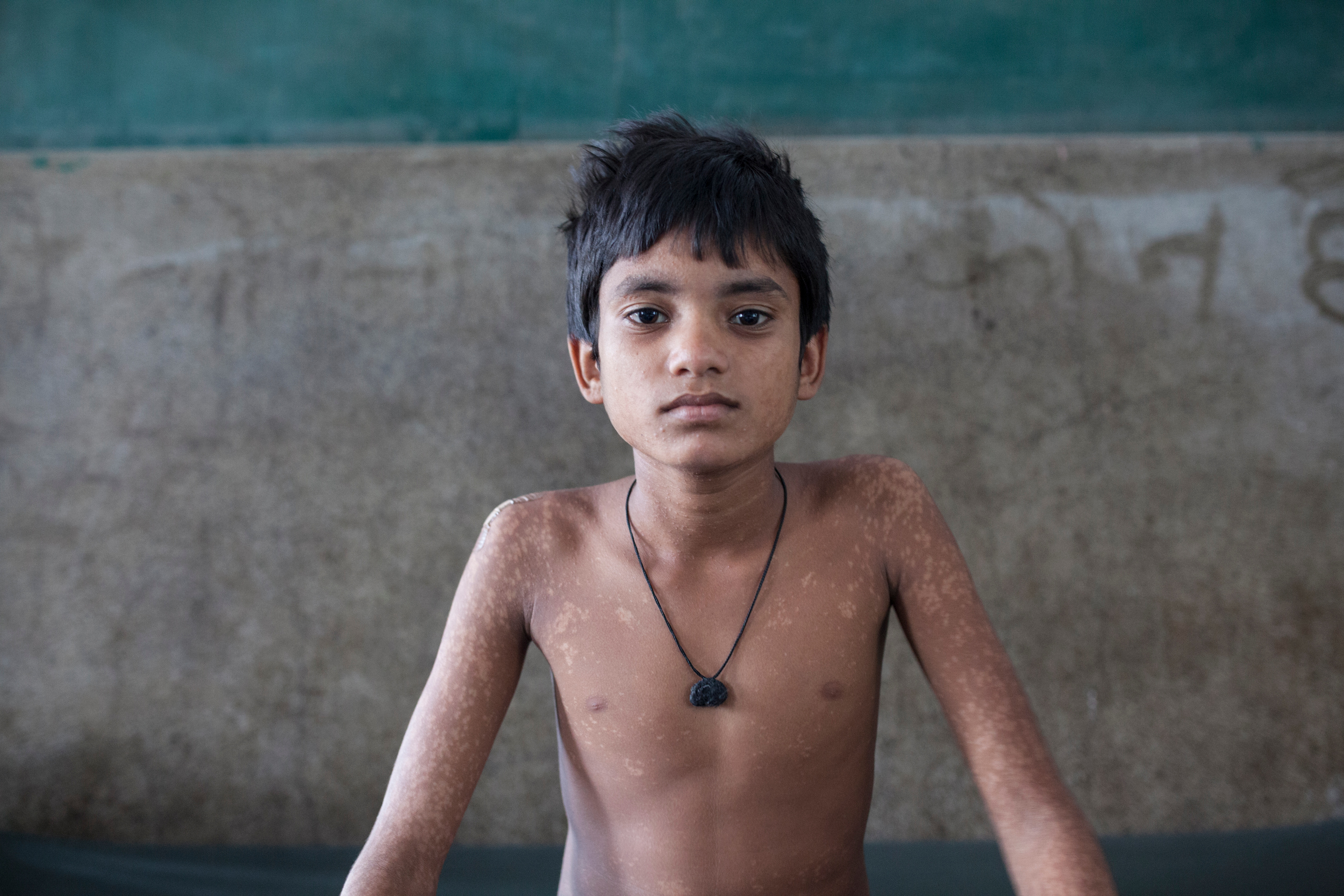 Jummadin suffered Kala Azar for the first time two and a half years ago and he was treated. A few months ago, his father Jummadin, noticed spots on the skin of his son. Alarmed he took Jummadin to Gopalganj's PHC where they confirmed that he was suffering PKDL.