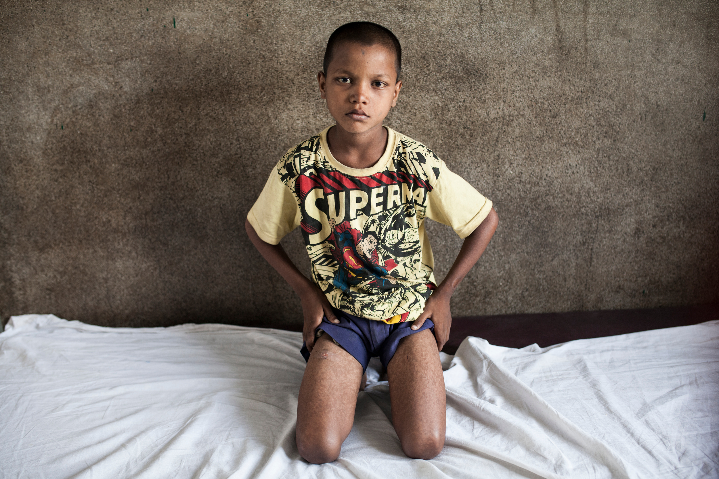 Ranjit is 10 years old and suffers from Visceral Leishmaniasis commonly known in India as the Black Fever. He came to Harjipur from Dharahara with his older brothers seeking treatment.