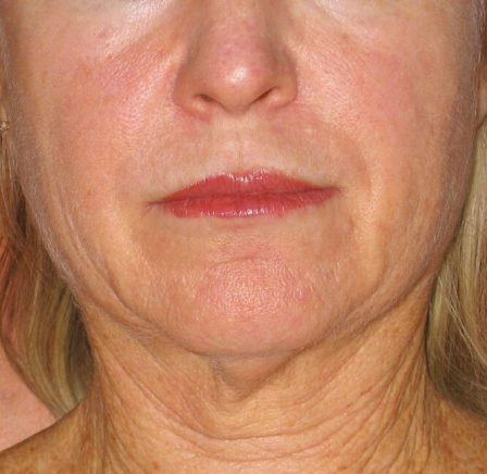 Before-Treatment-Face-448x436.jpg