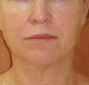 After-treatment-Face-300x289.jpg