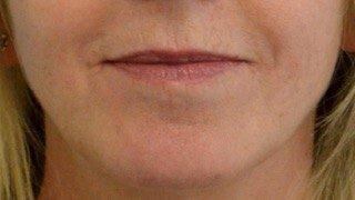 Before lips.jpg