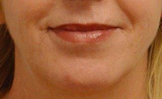 after lips.jpg
