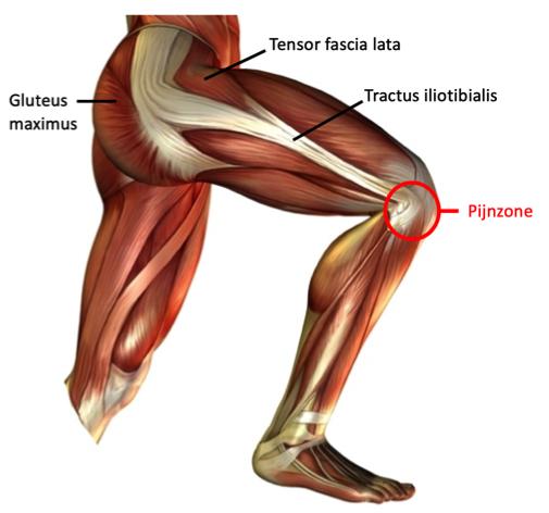 Een lopersknie, runners knee of het iliotibiaal frictiesyndroom. — GEZONDHEID IN BEWEGING