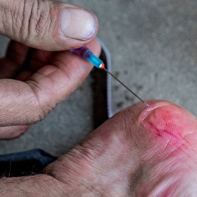 Ouch!! _ #blisters #adventureracing #adventure #traillife #getoutside #outdoorlife #explore #getoutdoors #mountainbike #mtb #trailrun #paddle #kayak #run #xpd #arworldseries #hellsbells #24hr #geoquest #48hr #expedition #visitnsw #southcoastnsw #husky #terranova24