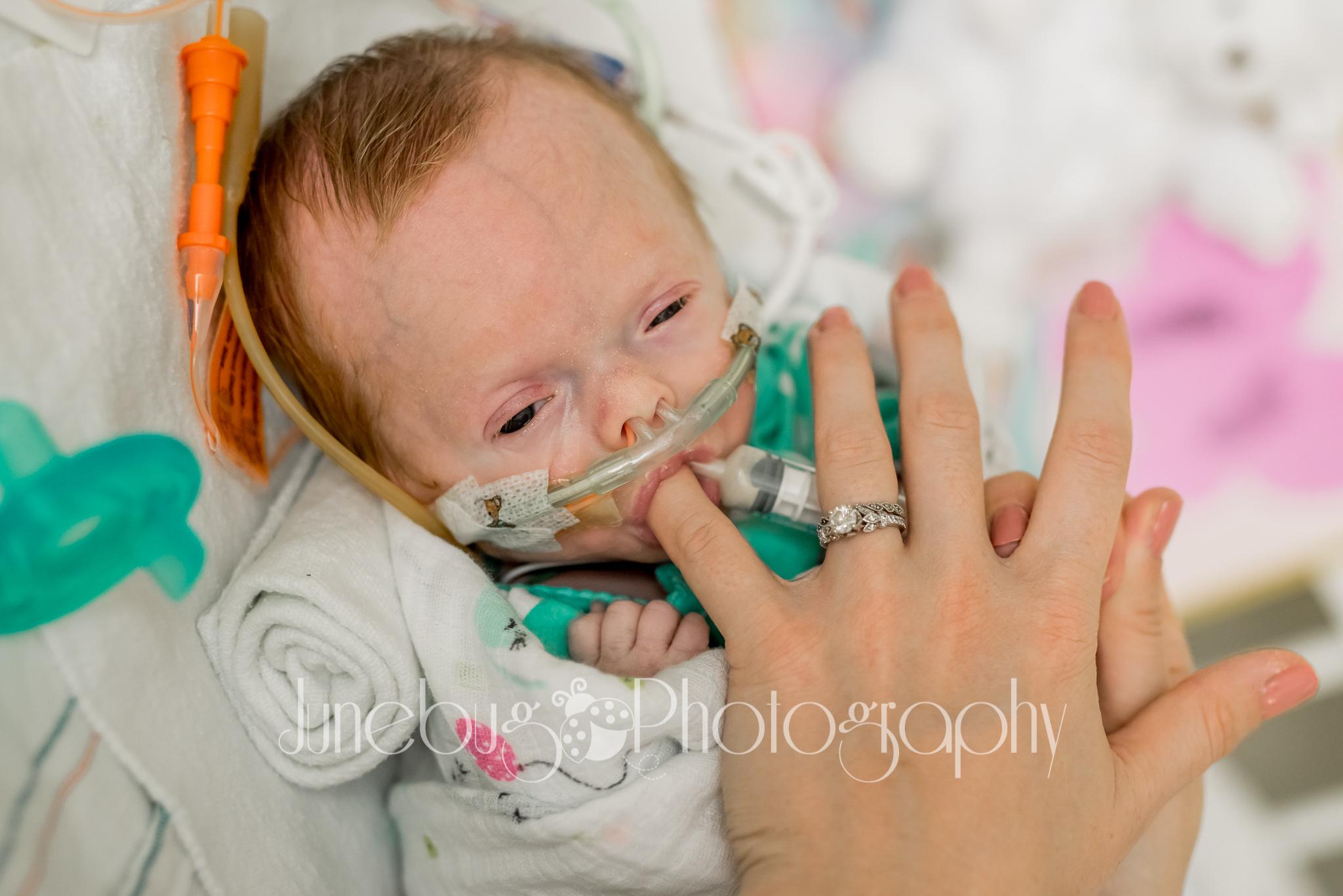 Mom, Lauren, feeding baby Emilee through a syringe.