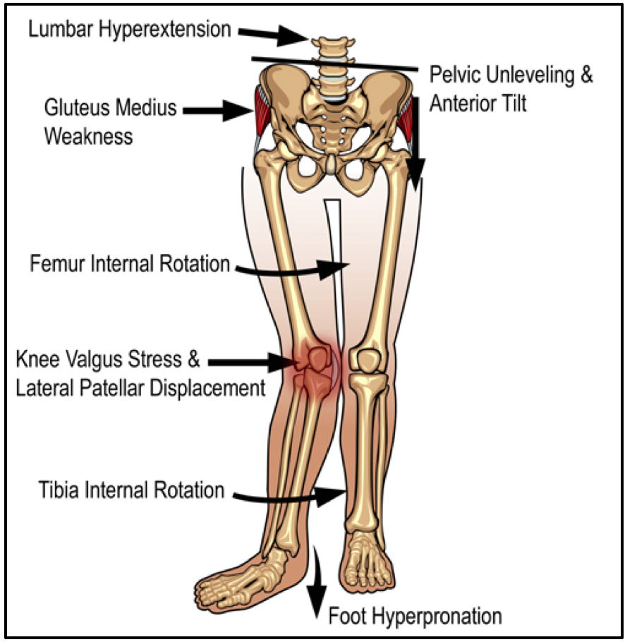 Patellofemoral Pain Syndrome (PFPS)