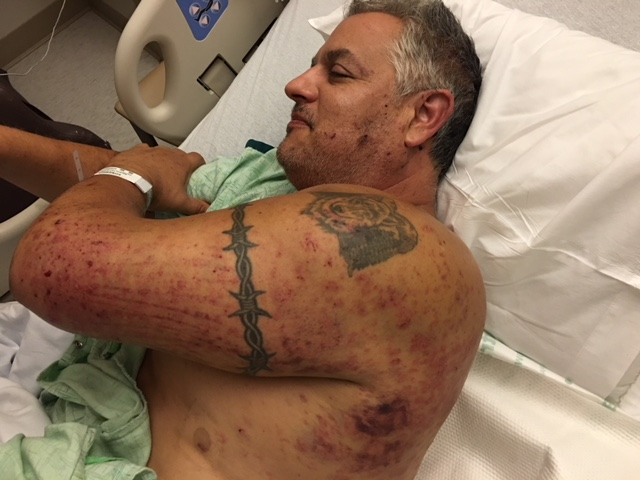 Steve Bustillos - Bustillos is the only survivor of the fire tornado. Shown are the burn and scratch marks he endured while hiding under a bulldozer during the Carr Fire.Photo Provided By: Steve and Carrie Bustillos