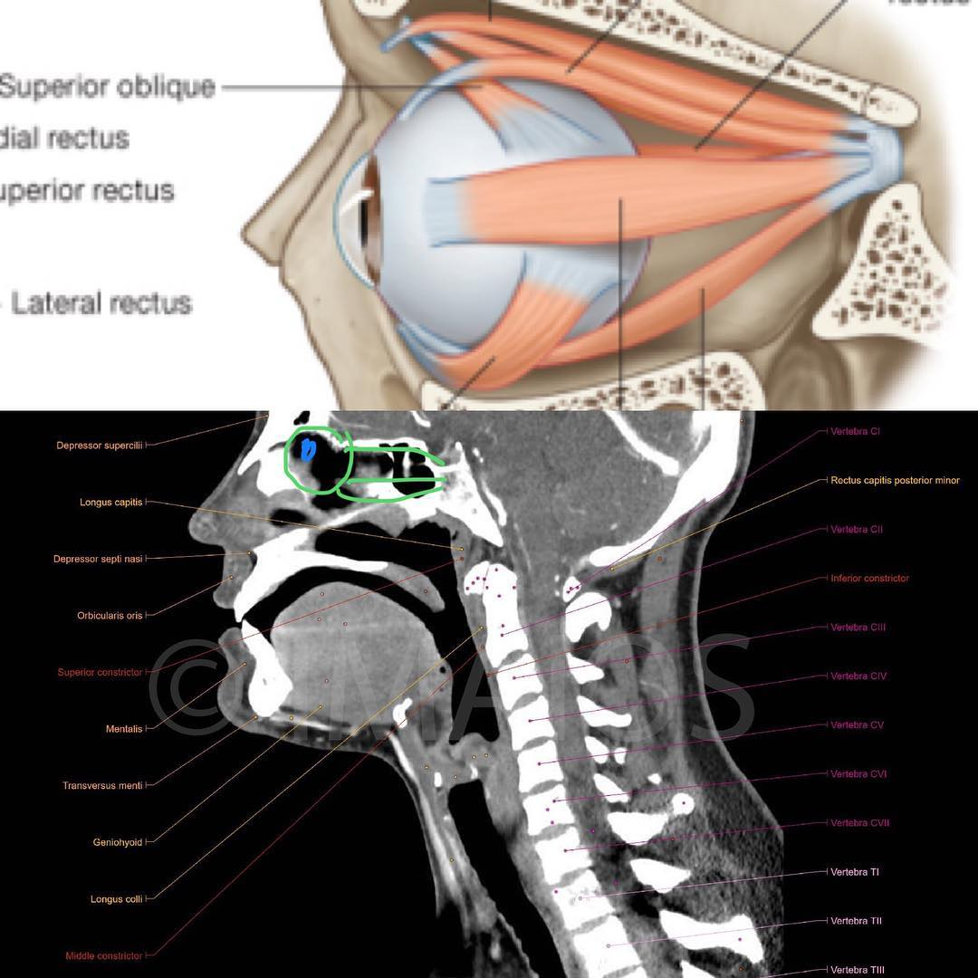 Notice the depth of the eye socket, how far the eye muscles go back, and how close they are in relation to the soft palate, top of the spine and base of the skull (and soft palate).