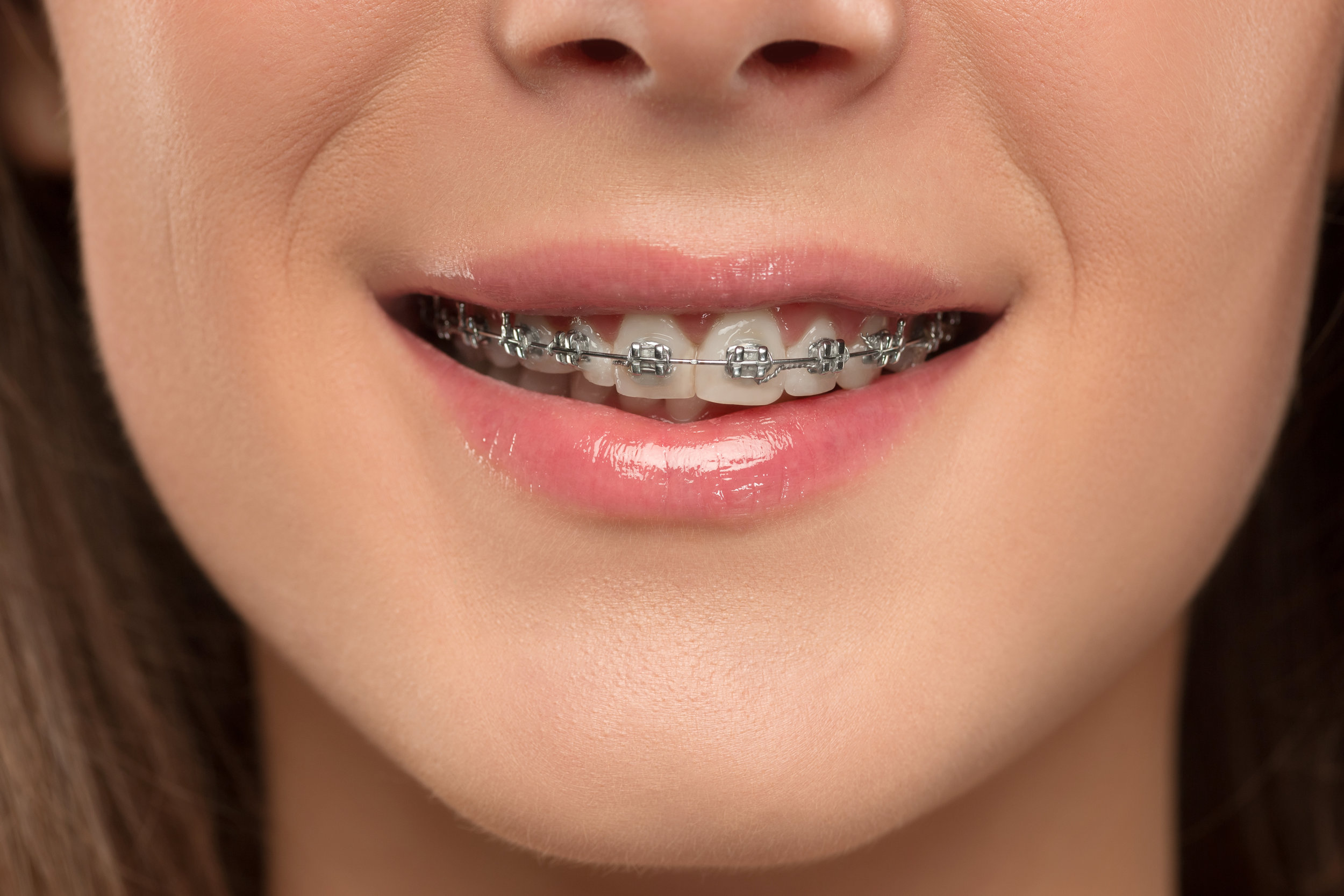Orthodontics - -Clear and Metal Brackets-Invisalign-TMJ Splints-Night Guards-Clear and Traditional Retainer-Habit-breaking appliances-Palatal Expanders and Space Maintainers