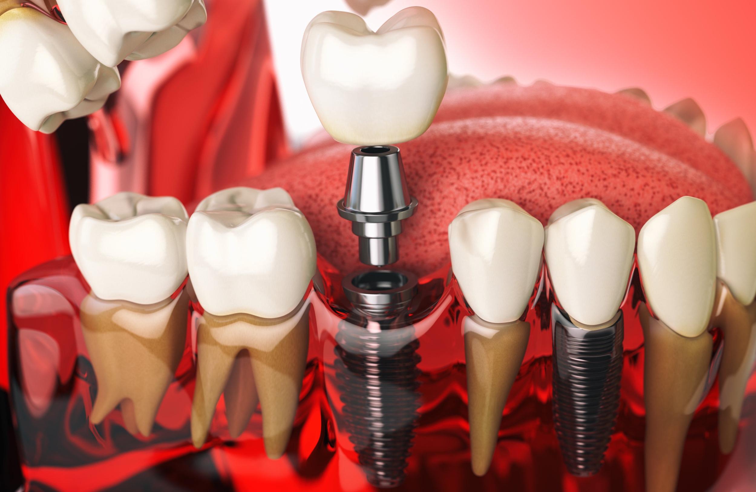 Dental Implants - -Straumann-DIO