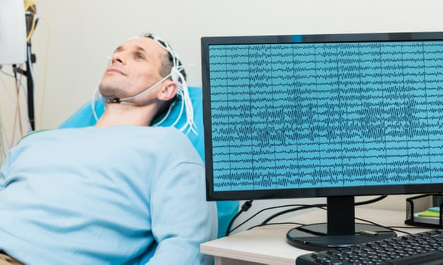The study recording brain signals sent to trigger organ movement is considered a breakthrough. Photograph: yacobchuk/Getty/iStockphoto