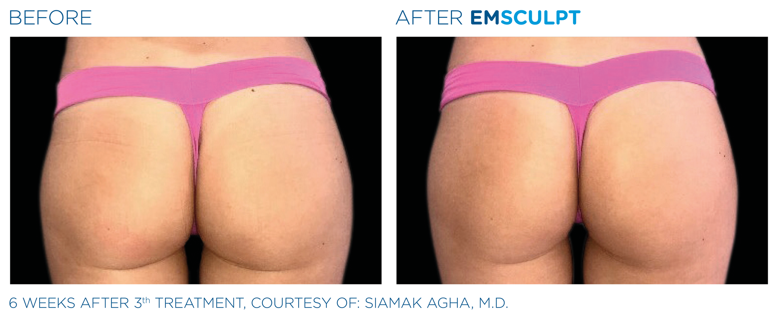 Emsculpt_PIC_Bacardfemalebuttock058.png