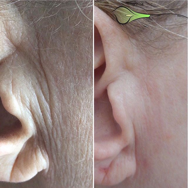 Looks like a miracle?! But it's not, it's an actual result after the second treatment of #Fibroblastskintighening🙌🏻😍⠀ ▫️▫️▫️▫️⠀ Book our complimentary consultation today to see what we can do for you!⠀ ➡️ Askcares.com/appointments⠀ .⠀ ▫️Training is available ▫️⠀ .⠀ #askcares #fibroblast #nobotox #skincarelosangeles #losangelesbeauty #cosmetologylosangeles #косметологлосанджелес #antiagingskincare #fibroblastskintightening #plasmapen #fibroblastla #fibroblastlosangeles