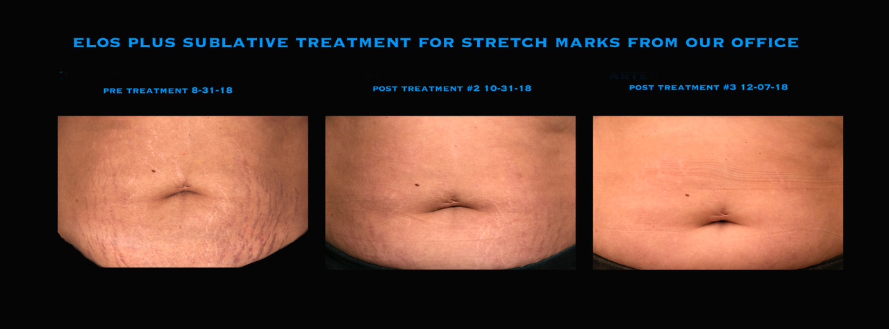 Elos Plus Sublative Treatment for removal of stretch marks, offered at Mooney & Berry Gynecologists. Most popular gynecologists in Hammond, LA. Gyn serving Hammond area