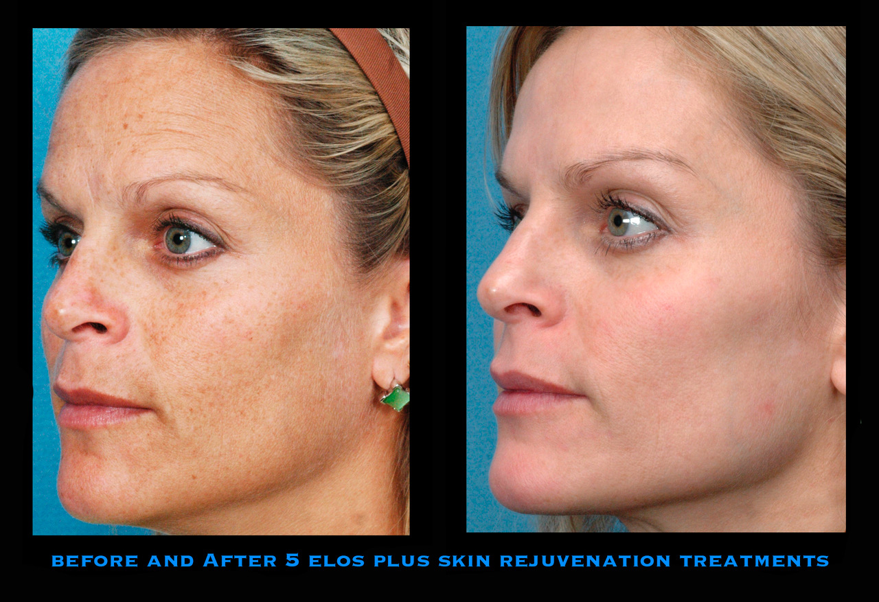 Elos Plus Skin Rejuvenation offered at Mooney and Berry Gynecologists serving the Hammond, LA area. Before and after 5 Elos plus Skin rejuvenation treatments. Wrinkle removal in hammond, dark spot removal in hammond area. Elos plus near me.