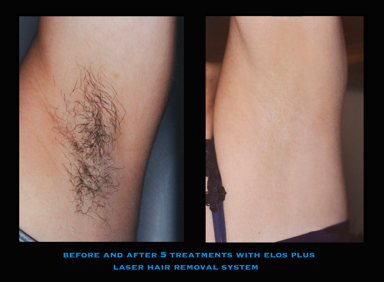 Laser Hair removal offered at Mooney and Berry Gynecologists serving the Hammond, LA area. Elos Plus Laser hair removal system in Hammond, LA. Laser hair remover, laser hair removal near me. Hammond laser hair removal.