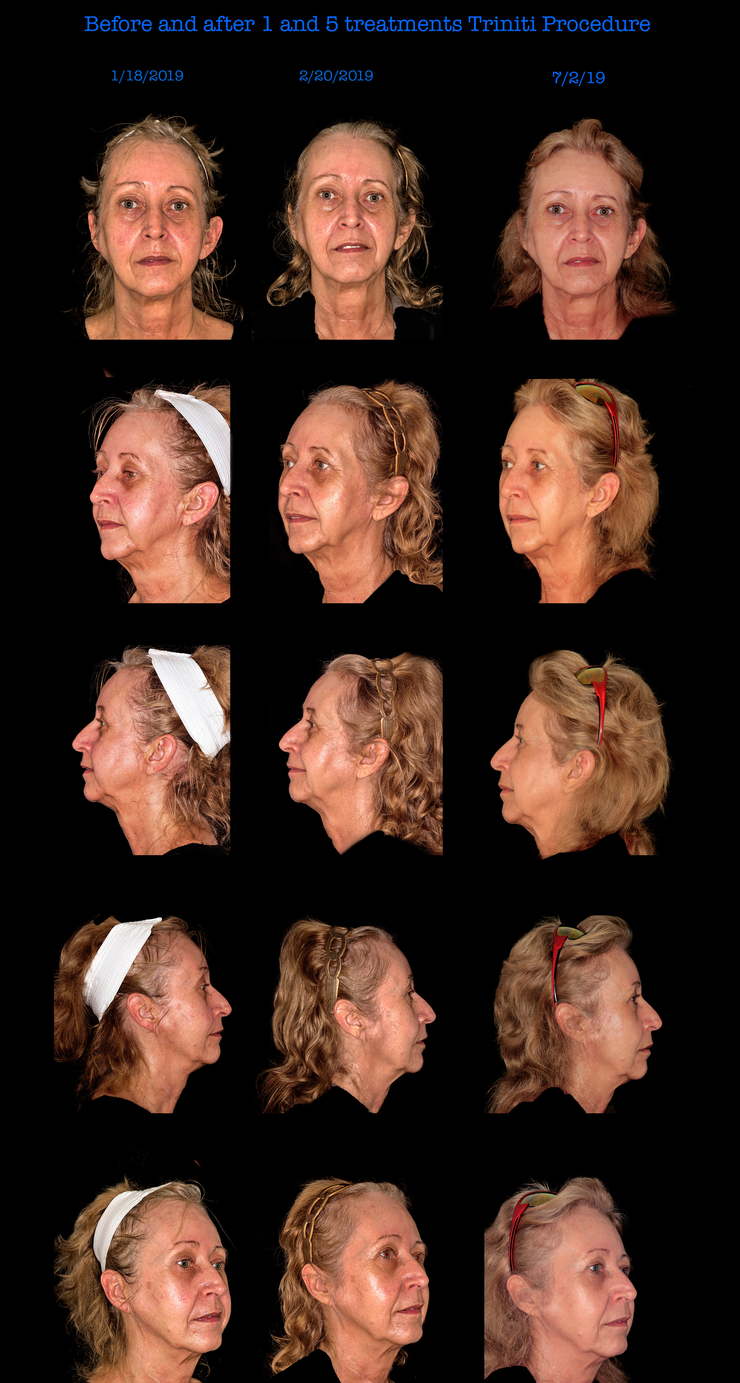 Before and After 1 Trinity Treatment and 5 Trinity Treatments with our Elos Machine! Available at Mooney and Berry Gynecologists in Hammond, LA