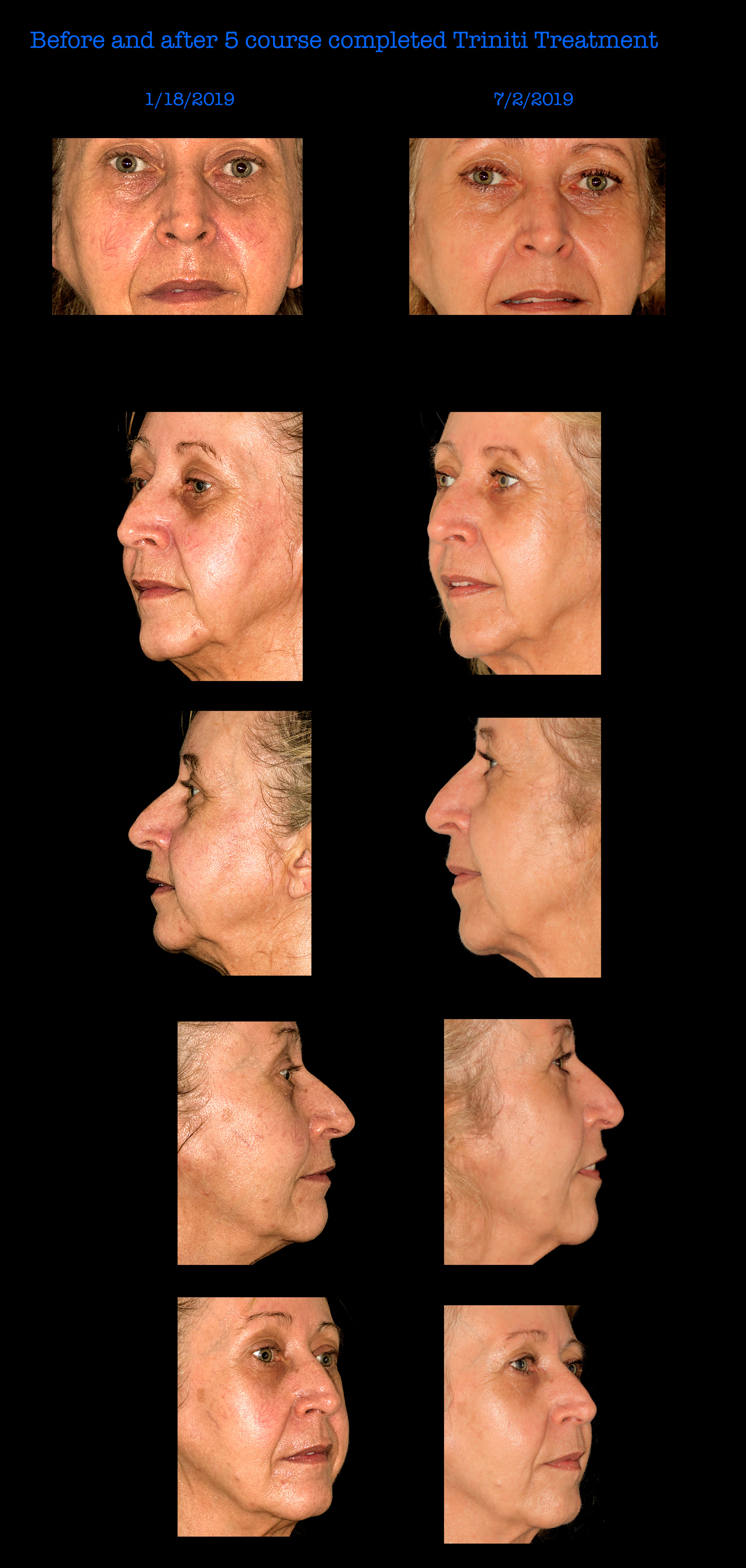 Before and After 5 Course Completed Trinity Treatment with our elos Machine, available at Mooney and Berry Gynecologists in Hammond, LA