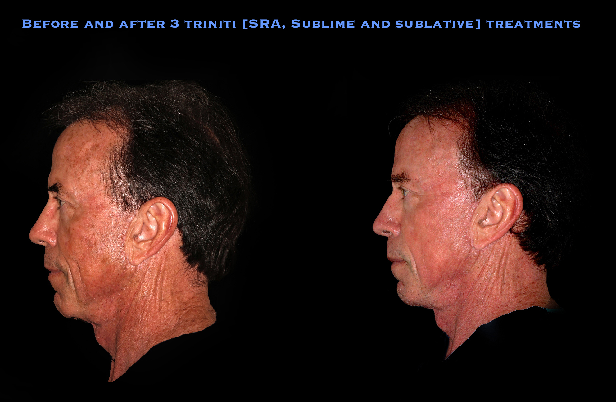 Before and After 3 elos Treatments of Trinity Treatment (Sublime, SRA, and Sublative) at Mooney and Berry Gynecologists in Hammond, LA