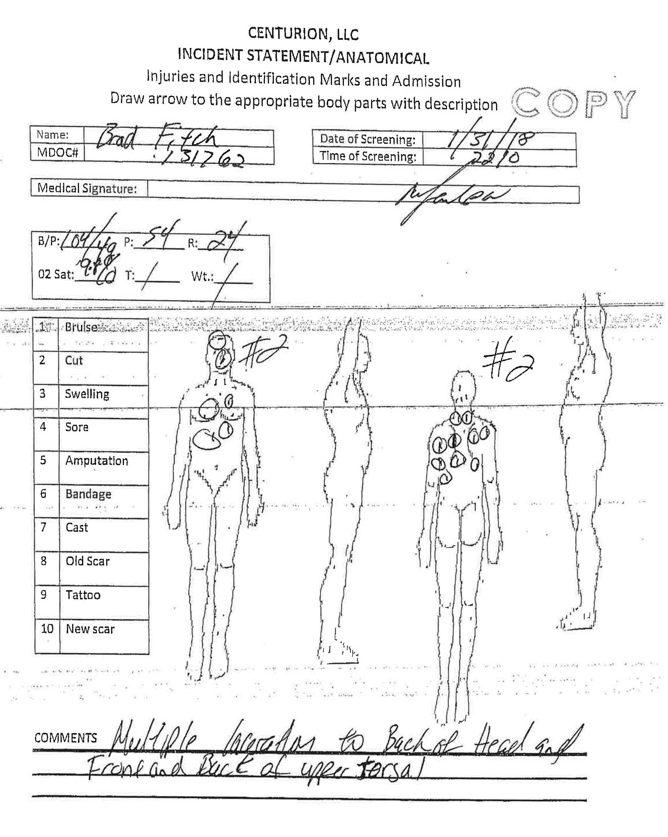 An anatomical diagram from the Mississippi Department of Correction's investigative report into Brad Fitch's death showed multiple lacerations to the back of the head and torso.   Mississippi Department of Corrections