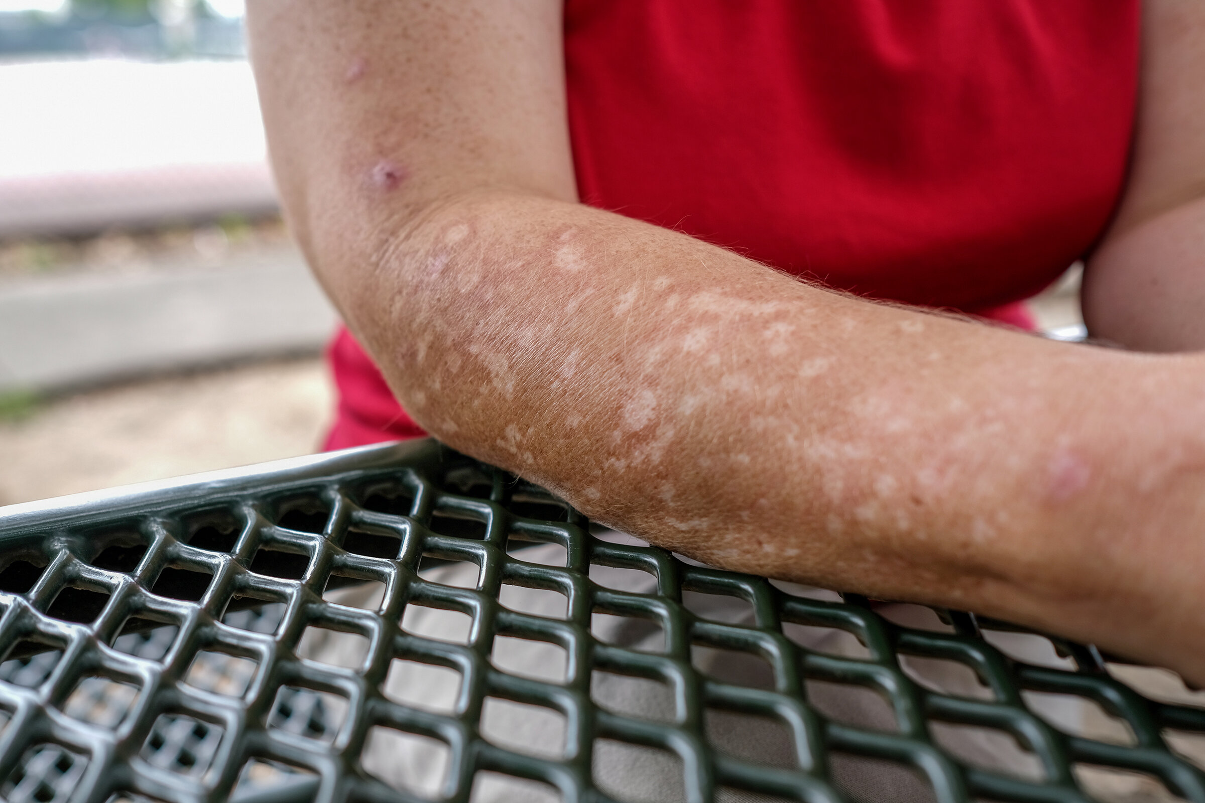 Susan Wright, 51, a Brandon, Miss. resident suffers from excoriation disorder that causes her to pick her skin.   Charles A. Smith/Mississippi Center for Investigative Reporting