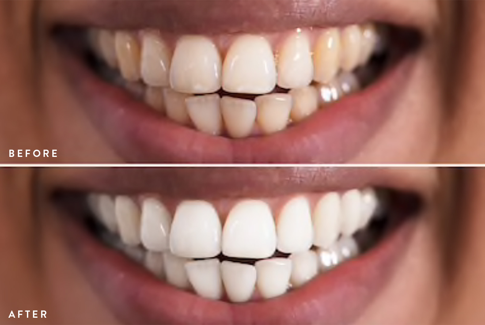 WHITENING BEFORE & AFTER 1.jpg