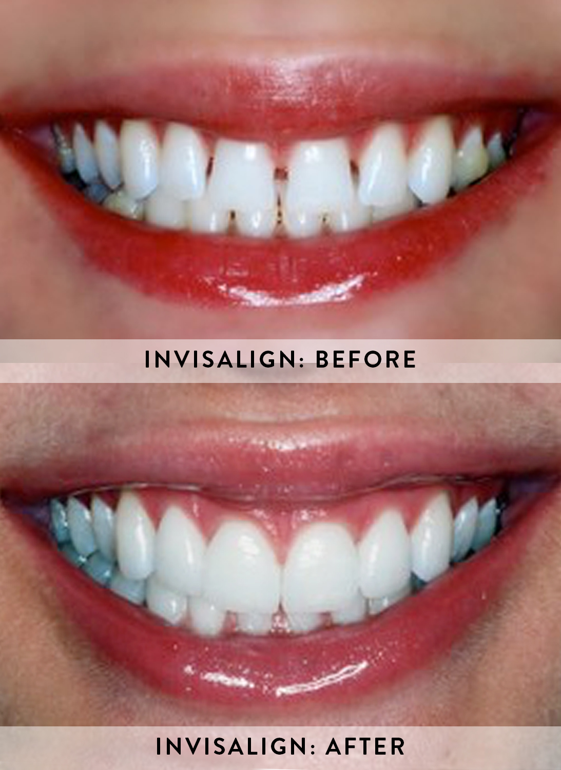 INVISALIGN 2- BEFORE & AFTER.jpg