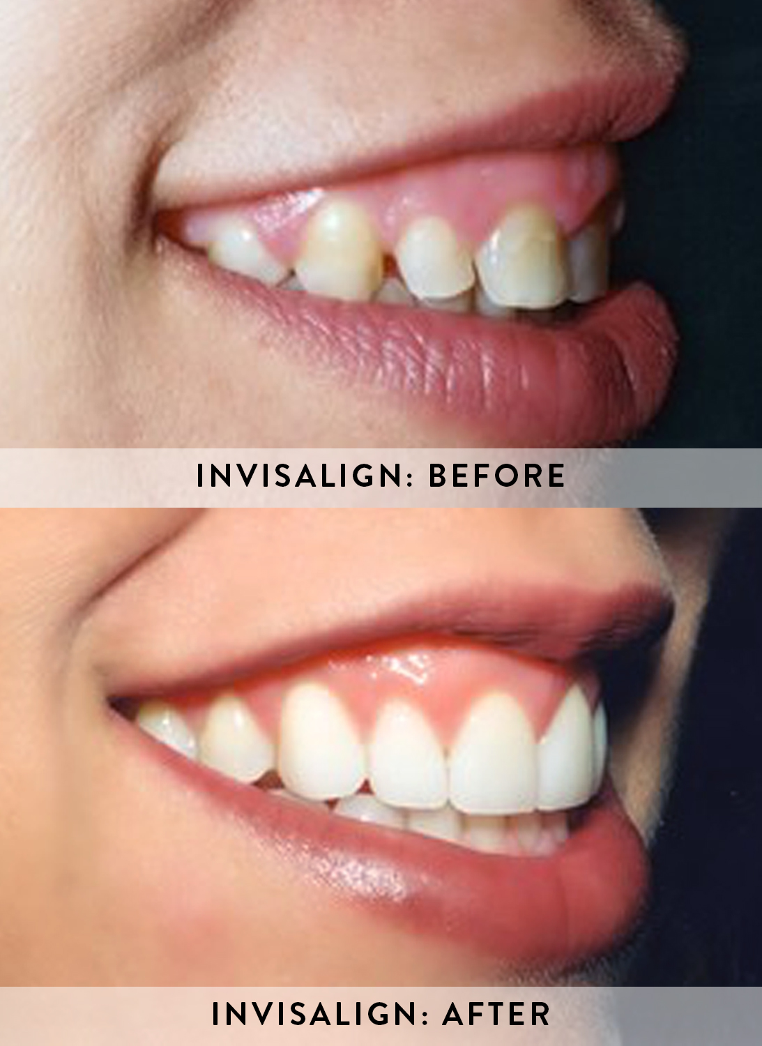 INVISALIGN 3- BEFORE & AFTER.jpg