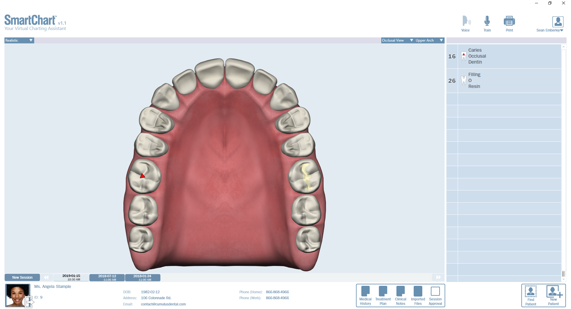 Patient1-Odontogram-Upper-Occlusal.png