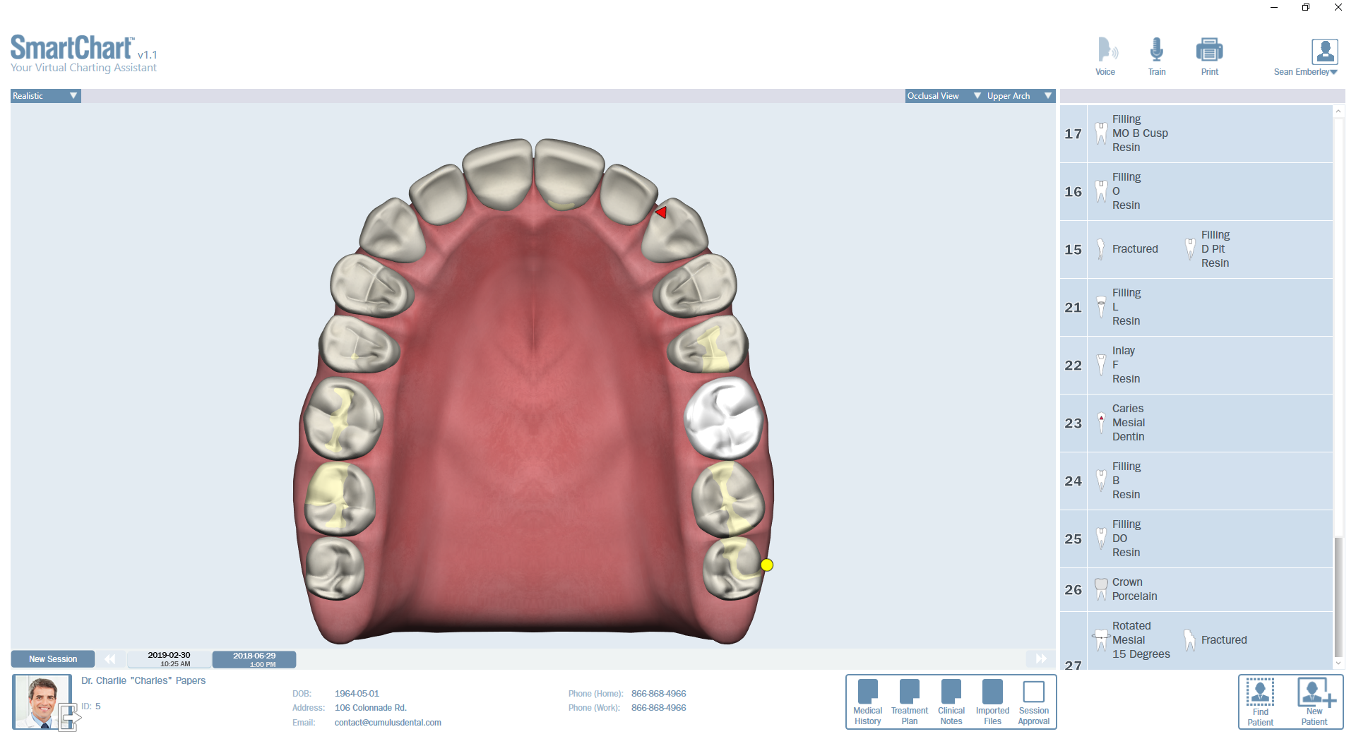 Patient2-Odontogram-Upper-Occlusal.png