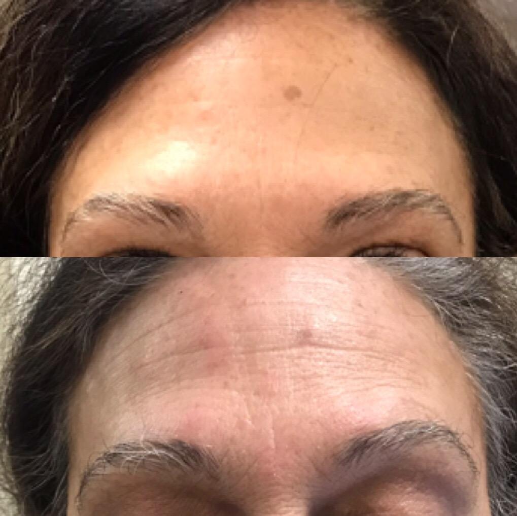 25 units Botox