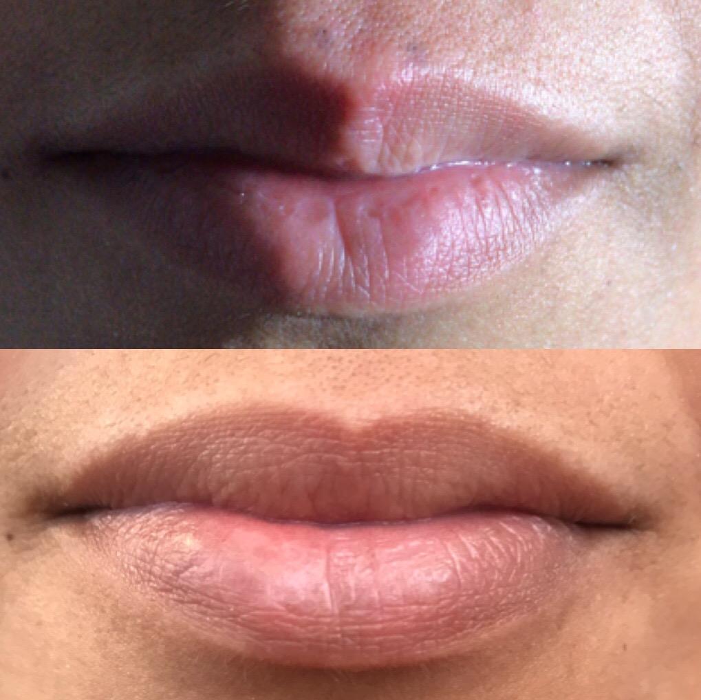 Lip Flip: 10 Units of Botox