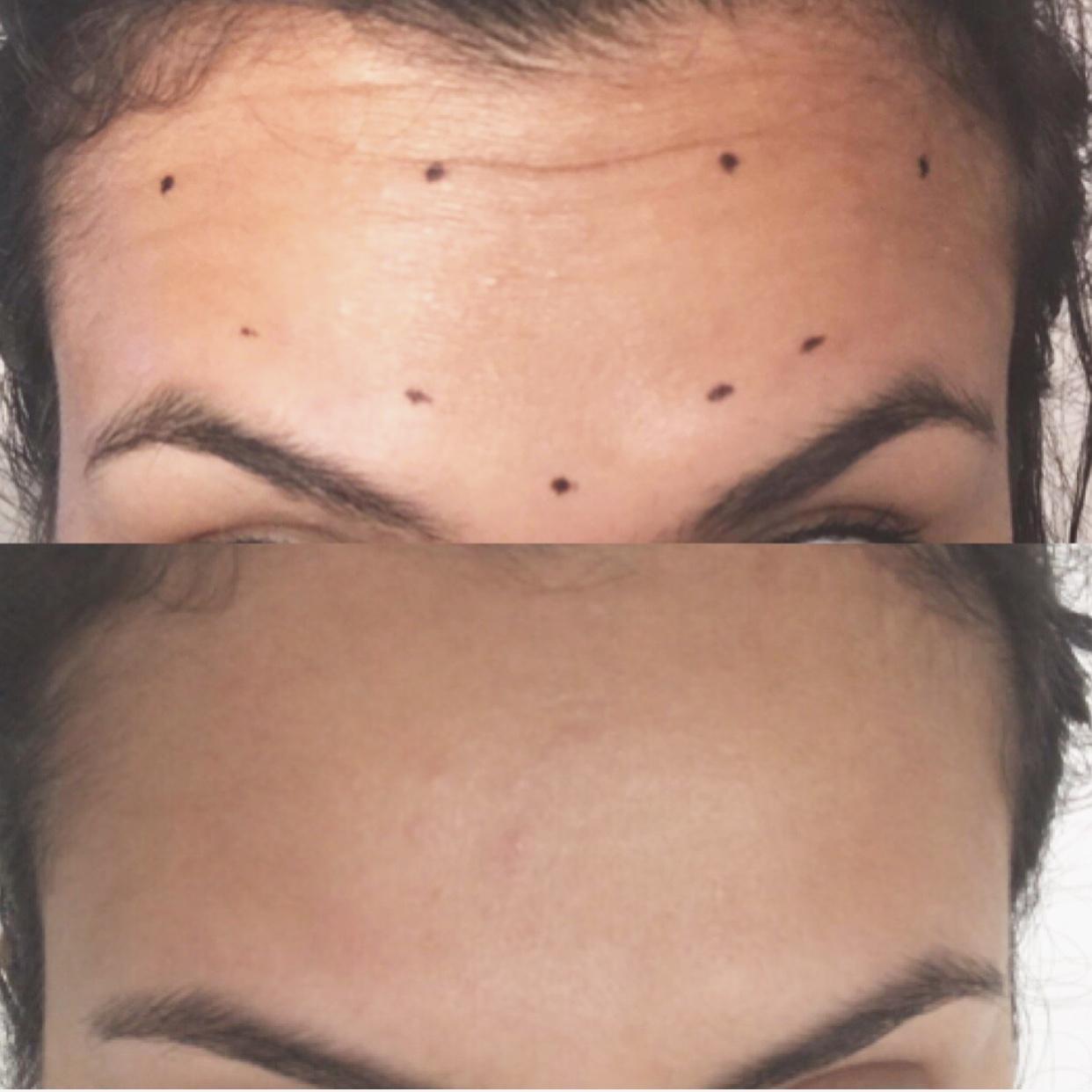 30 units of Botox