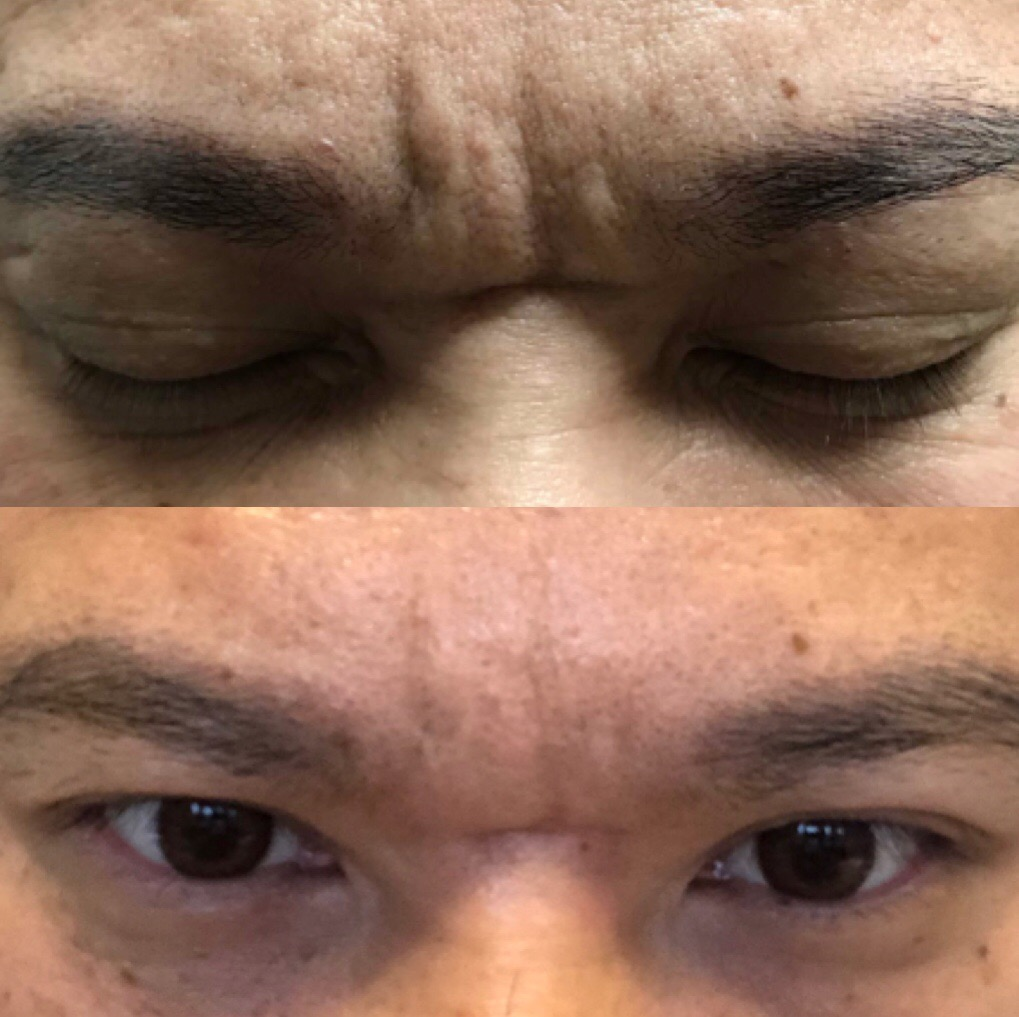 30 units of botox only to the glabella