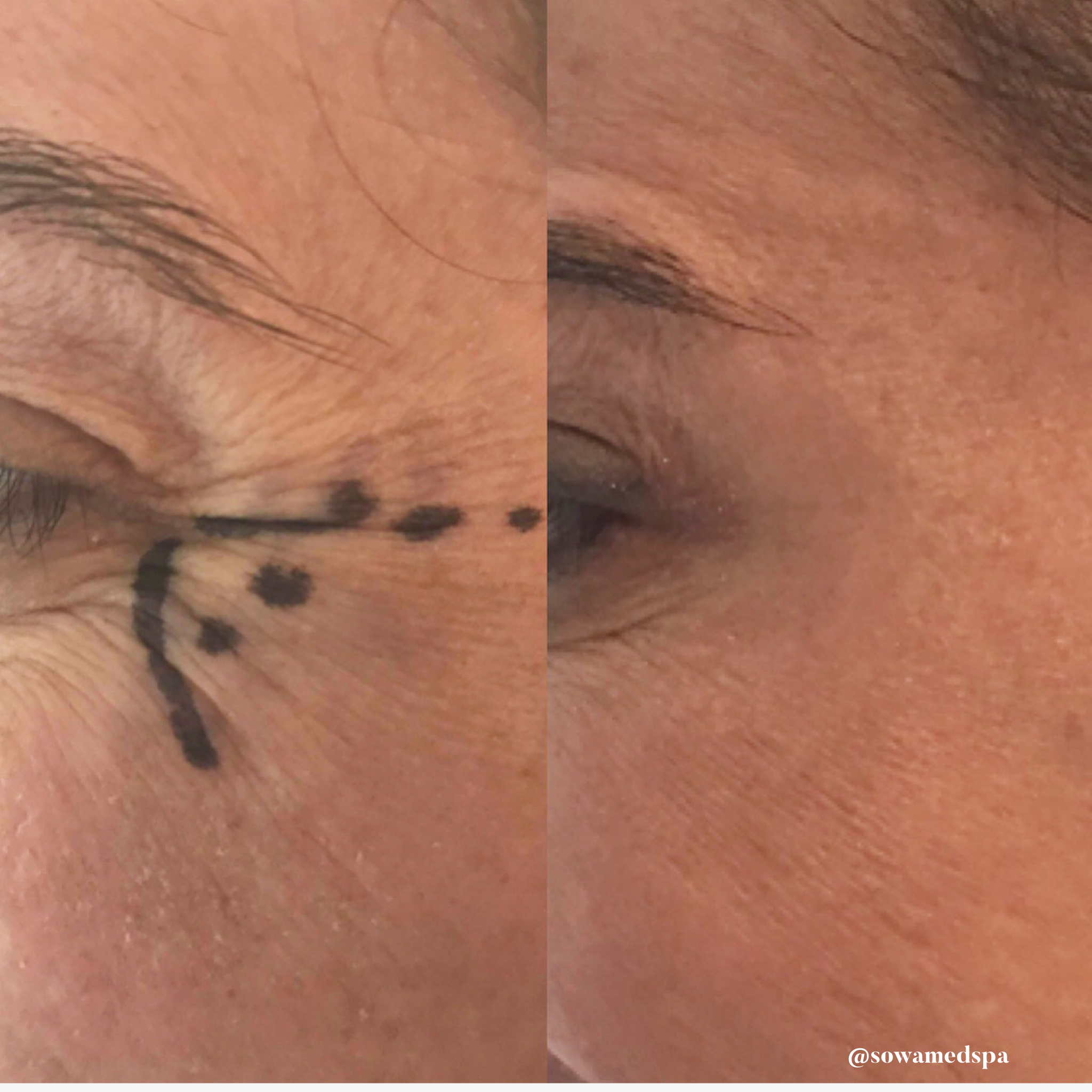 15 units of botox total to the obicularis occuli